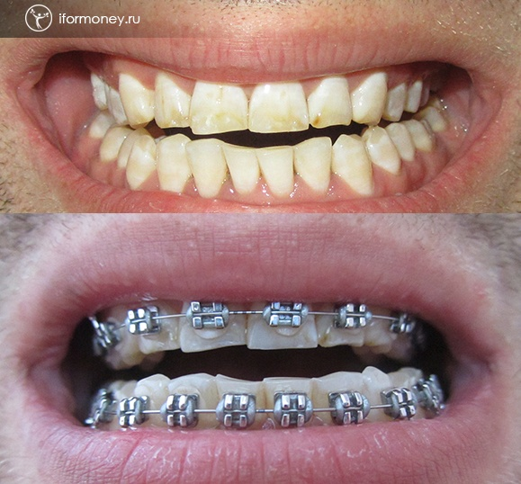 the Result of the 3rd month with braces. The teeth become vertical.