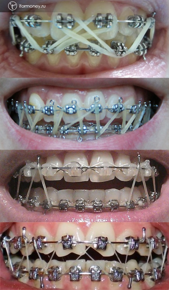 How to use braces on braces.