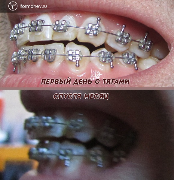The result of 5 months with braces.