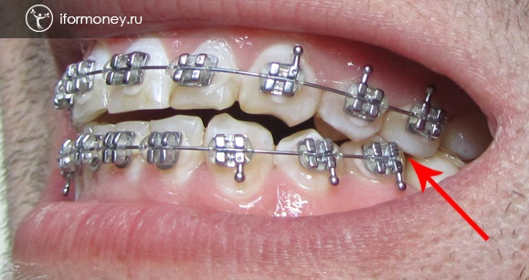 The upper tooth presses on the lower bracket.