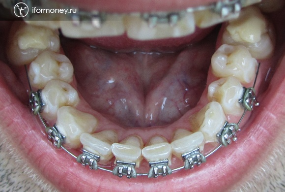 The extreme braces on the lower jaw disengaged.
