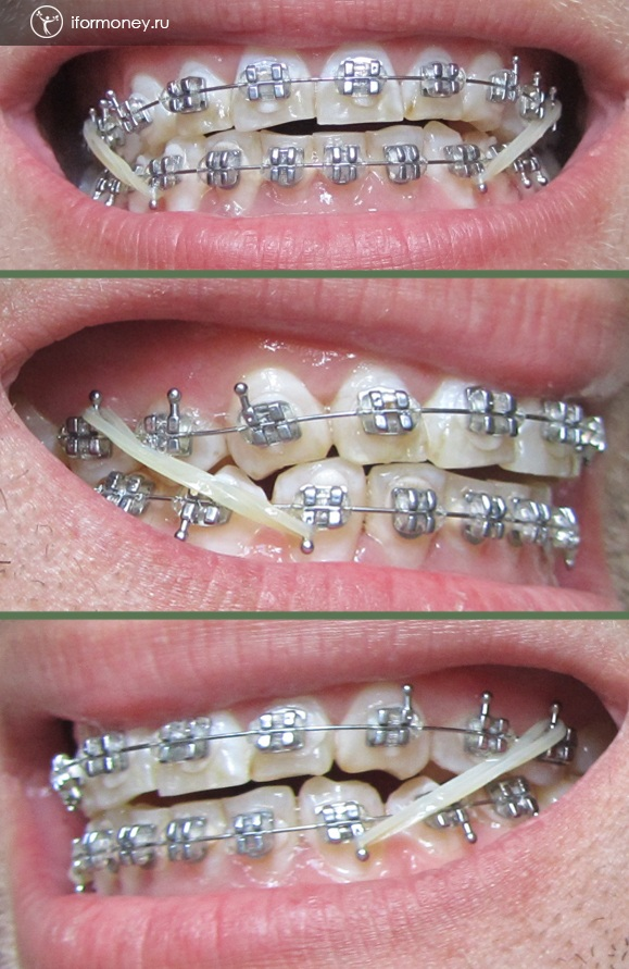 Elastic bands on braces to push the lower jaw back.