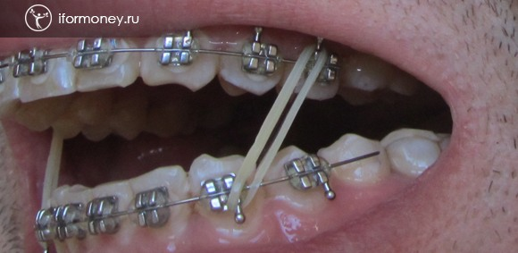 Unglued braces extreme tooth in the lower jaw